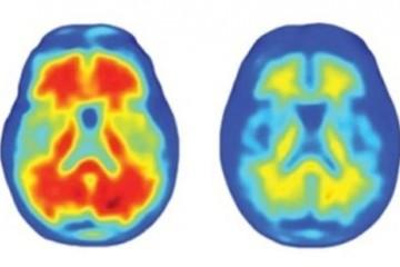 顾问团全员反对美国18年来首款抗阿尔茨海默病新药引发争议